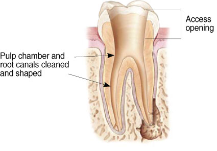 Root Canal at Kenneth S. Gluski, D.D.S, Family Dentistry and Orthodontics